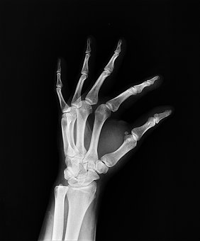 Xray image  of a hand